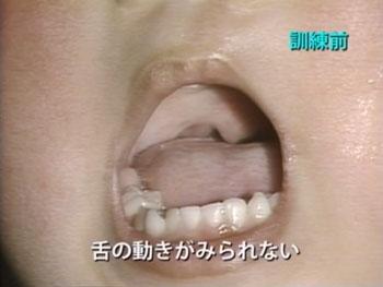 口蓋裂言語検査